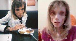 26 ročná Kristína váži iba 17 kg. K jej stavu sa vyjadrili aj lekári