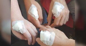 Švédi si nechávajú pod kožu implantovať čipy. Ide o hrozbu či vymoženosť?